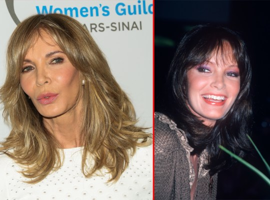 Jaclyn Smith Angels Plastic Surgery Is Hell On Her Face
