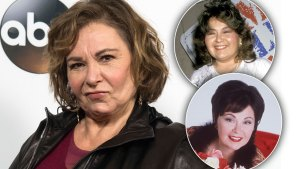 roseanne barr plastic surgery changes