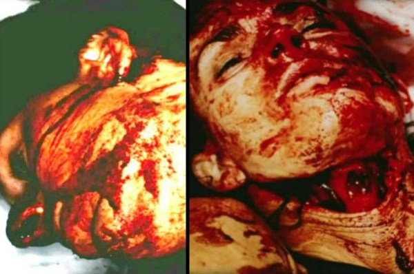 Nicole brown simpson autopsy deah photo