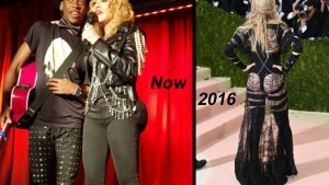 madonnabutt implants plastic surgery