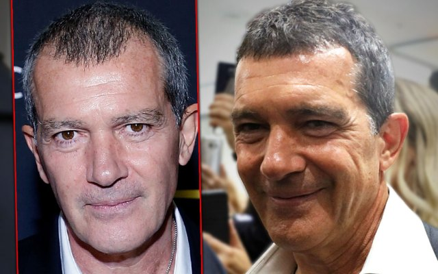 Antonio Banderas on Left Balding and Antonio Banderas on Right with Hair Transplant