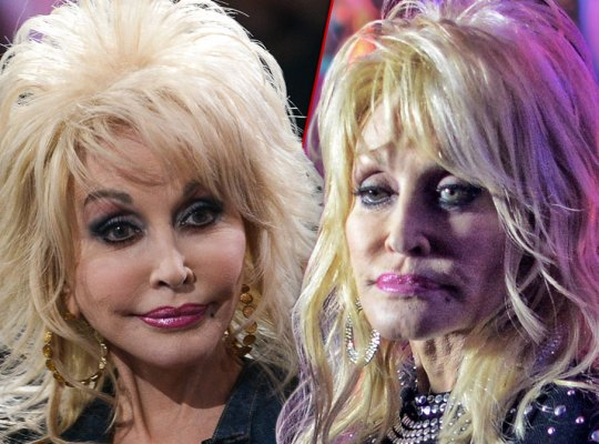 Dolly Parton with Botx and Fillers on Left and Dolly Parton with Botox and Fillers Fallen on Right
